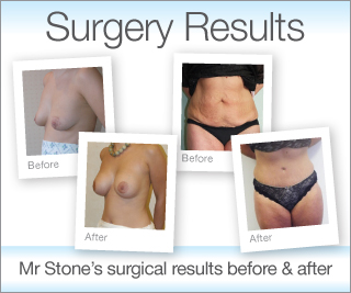 Exeter Cosmetic surgery results before & after