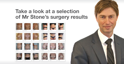 Look-at-Mr-Chris-Stone-Surgery-breast-abdominoplasty-before-&-after-Results-photos