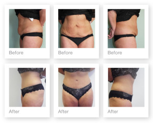 Abdominoplasty before & after surgery from Plastic Surgeon Christopher Stone