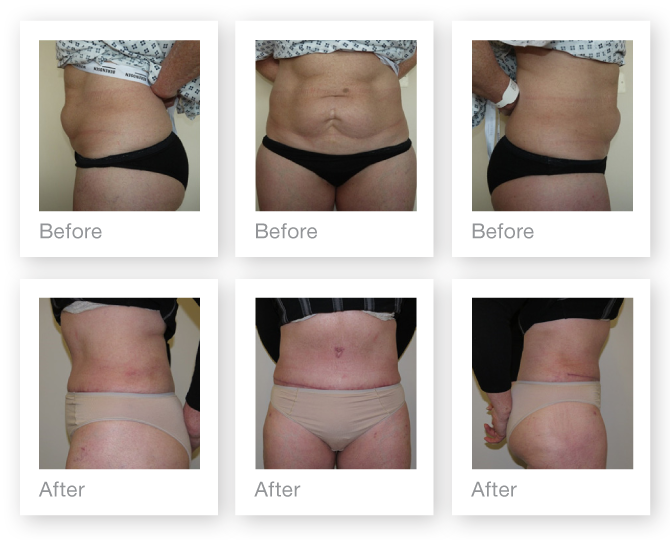 Abdominoplasty before and after cosmetic surgery Exeter plastic surgeon Christopher Stone June 2015