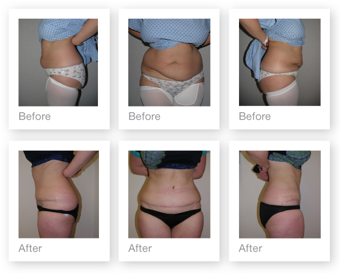 Abdominoplasty surgery result before & after by Plastic Surgeon Christopher Stone July 2014