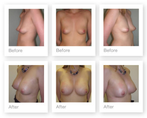 Breast Augmentation Surgery by Christopher Stone, Plastic Surgeon in Exeter, Devon (Before & After photos)