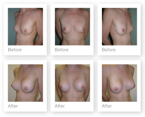 Breast Augmentation before & after by Christopher Stone, Aesthetic & Cosmetic Surgeon