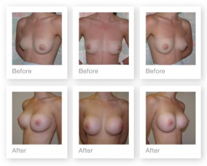 Breast Augmentation results - before & after surgery Chris Stone Surgeon in Exeter - July 2014