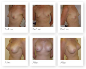 Breast augmentation before & after by Cosmetic Surgeon Chris Stone