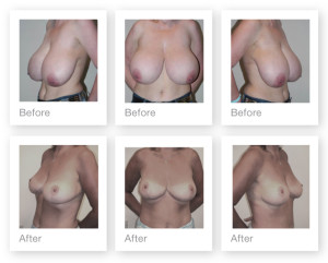 Breast Reduction before & after by Christopher Stone, Cosmetic Surgeon