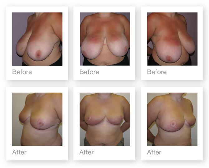 Breast Reduction before & after by Chris Stone, Cosmetic Surgeon based in Exeter, Devon