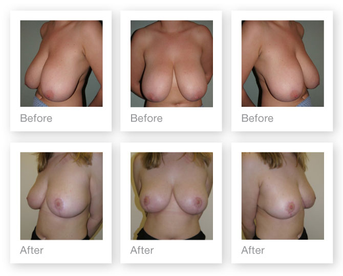 Breast Reduction surgery before and after by Chris Stone, Cosmetic Surgeon in Devon