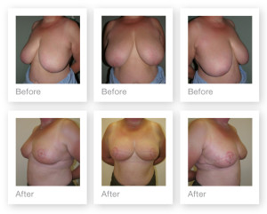 Breast Reduction by Surgeon Christopher Stone
