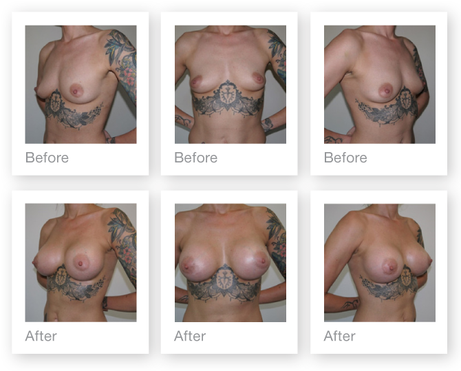 Chris Stone Breast Augmentation before & after surgery August 2015