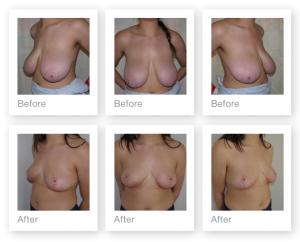 Chris Stone Breast Reduction before & after surgery results February 2017