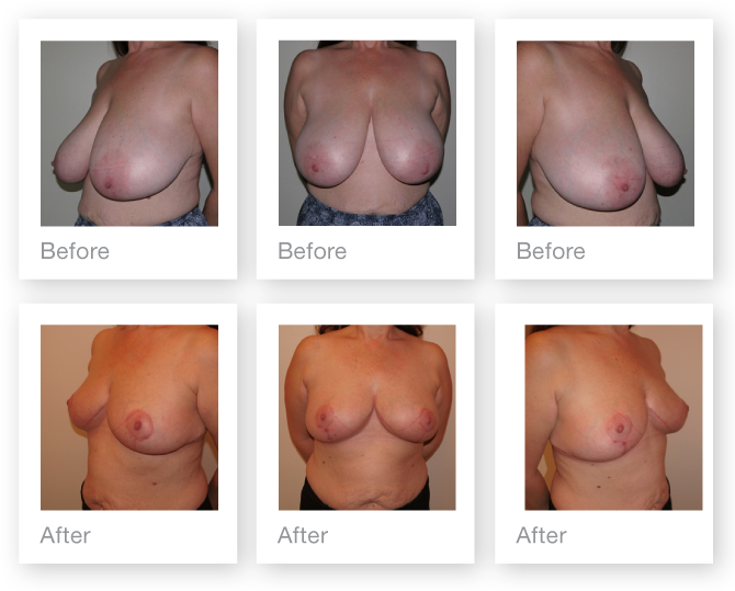 Chris Stone Breast Reduction surgery before & after surgery October 2017