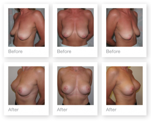 breast mastopexy & augmentation surgery before & after by Cosmetic Surgeon Christopher Stone October 2015