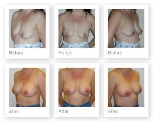 Breast Augmentation (boob job) 1 surgery before & after by Chris Stone Surgeon