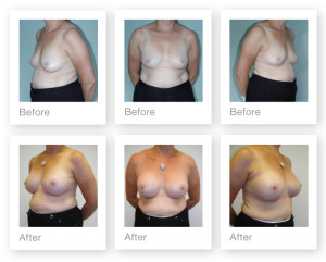 Breast Augmentation (boob job) 2 surgery before & after by Chris Stone Surgeon