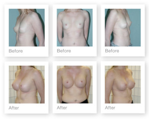 Breast Augmentation (boob job) 3 surgery before & after by Chris Stone Surgeon