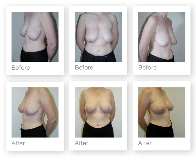 Breast mastopexy (uplift) surgery before & after by Chris Stone Surgeon
