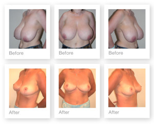 Breast Reduction surgery before & after by Chris Stone Surgeon