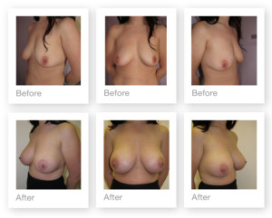 Breast Augmentation (boob job) 4 surgery before & after by Chris Stone Surgeon