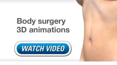 Link to Christopher Stone's body surgery 3D video animations