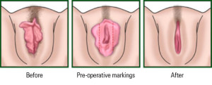 Labiaplasty surgery procedure diagram by Christopher Stone, Cosmetic Surgeon