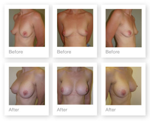 Breast augmentation by Exeter based Cosmetic Surgeon Christopher Stone