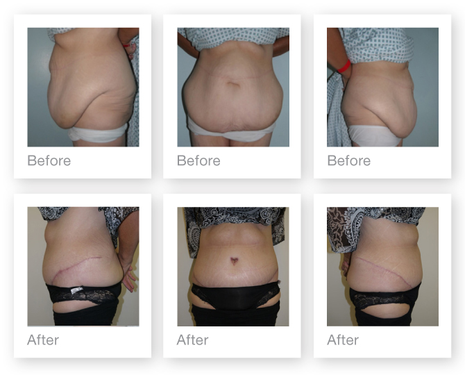 Abdominoplasty by Surgeon Chris Stone in September 2013