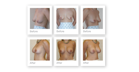 Exeter Cosmetic Surgeon Mr Chris Stone's plastic surgical results - before & after surgery