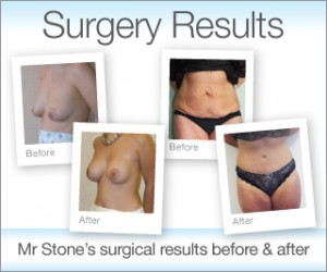 Exeter Cosmetic surgery results before & after pics by Plastic Surgeon Chris Stone