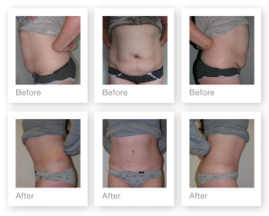 Abdominoplasty before and after cosmetic surgery result by Plastic Surgeon Christopher Stone