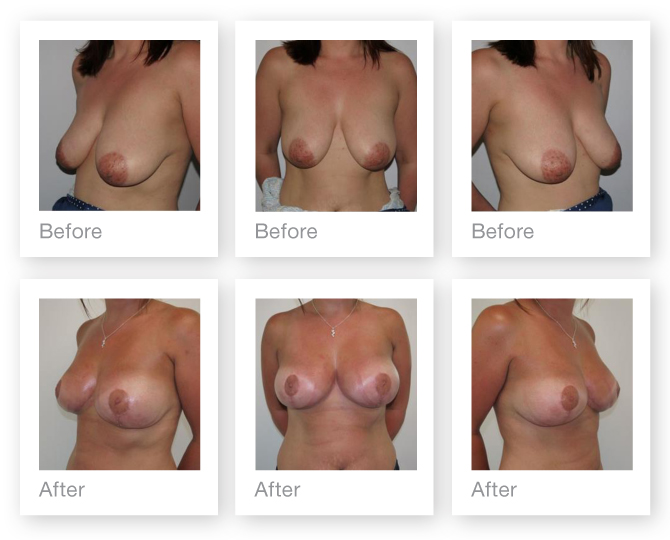 Mastopexy Breast Augmentation Surgery before and after by cosmetic surgeon Christopher Stone June 2014