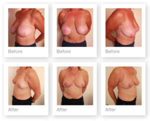 Exeter Breast Reduction surgery before & after by Cosmetic Surgeon Christopher Stone December 2016