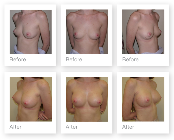 Chris Stone Breast Augmentation Surgery before & after surgery March 2017