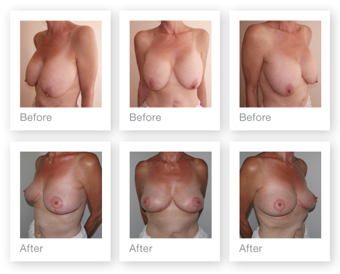 Chris Stone Breast Augmentation & Mastopexy surgery before & after surgery July 2017