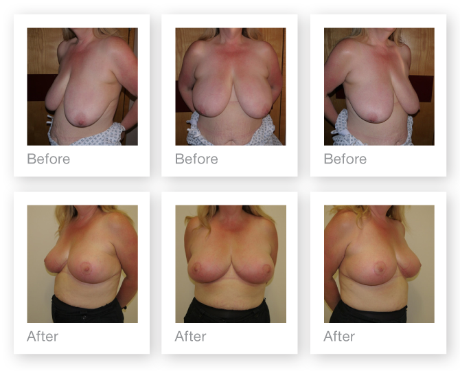 Chris Stone Breast Mastopexy (breast uplift) surgery before & after surgery August 2017