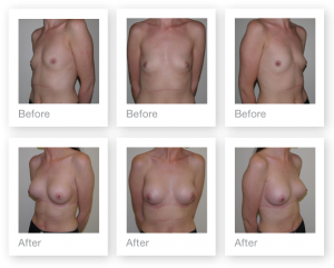 Chris Stone Breast Augmentation surgery before & after surgery October 2017