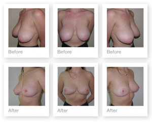 Chris Stone Breast Reduction surgery before & after breast reduction surgery October 2017