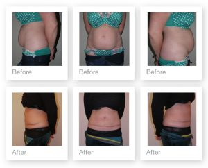 Exeter Abdominoplasty surgery pre and post op by Cosmetic Surgeon Chris Stone