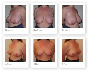Exeter Breast Reduction surgery pre and post op by Plastic Surgeon Chris Stone