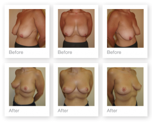 Exeter Breast Uplift Mastopexy surgery pre and post op by Plastic Surgeon Chris Stone