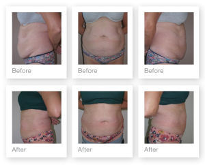 Exeter Liposuction surgery pre and post op by Cosmetic Surgeon Chris Stone
