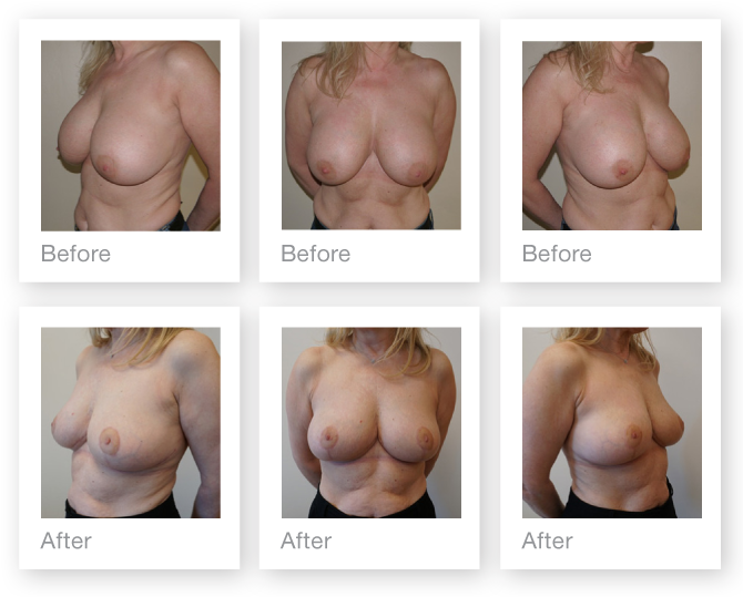 Exeter Breast Implant Removal & Mastopexy surgery before & after by Plastic Surgeon Chris Stone in February 2018