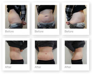 Chris Stone Abdominoplasty surgery before & after May 2018