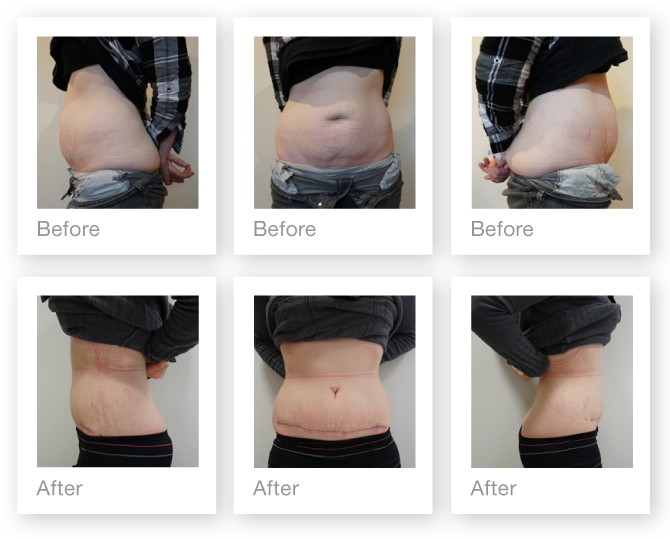 Exeter Abdominoplasty surgery pre and post op by Cosmetic Surgeon Chris Stone May 2018