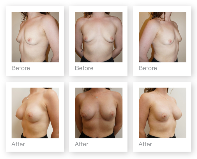 Chris Stone Breast Augmentation surgery before & after June 2018