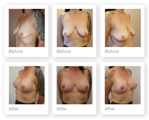Chris Stone Breast uplift Mastopexy Augmentation surgery before & after June 2018