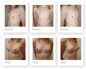 Chris Stone Exeter Breast Augmentation surgery before & after June 2018