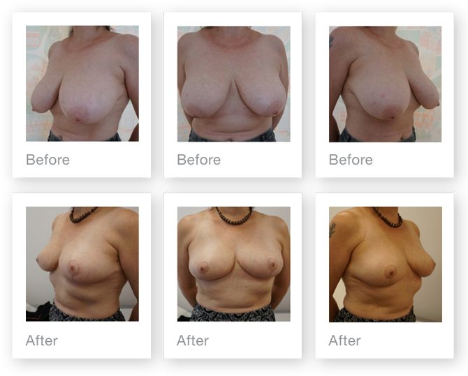 Chris Stone Breast Reduction surgery before & after July 2018