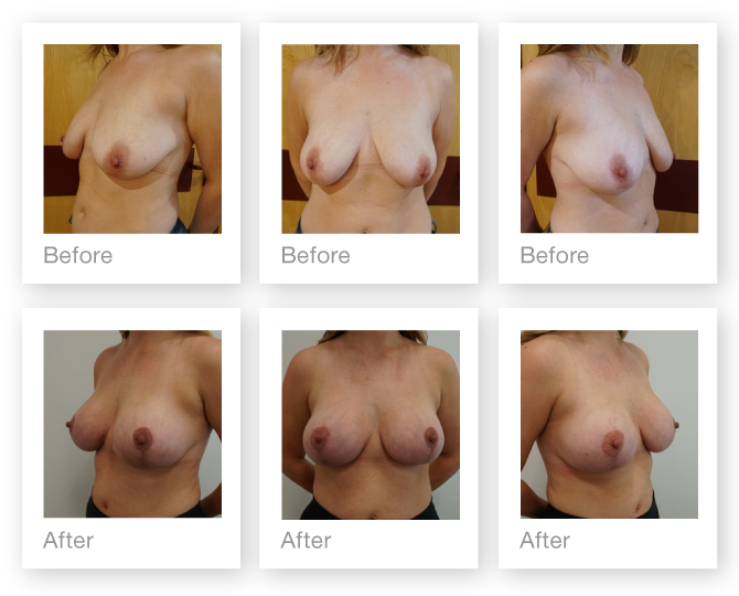 Chris Stone Surgeon Breast Uplift Mastopexy Breast Augmentation surgery before & after October 2018