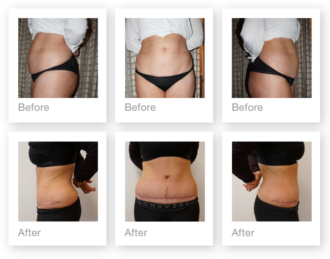 Chris Stone Cosmetic Surgeon Exeter abdominoplasty surgery before & after January 2019